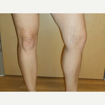 45-54 year old woman treated with Sclerotherapy before 3161507