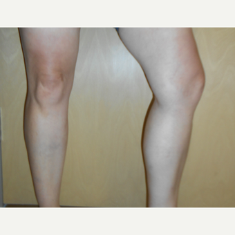 45-54 year old woman treated with Sclerotherapy after 3161507