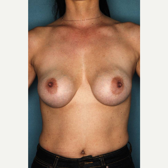 35-44 year old woman treated with Breast Implant Revision before 3289225