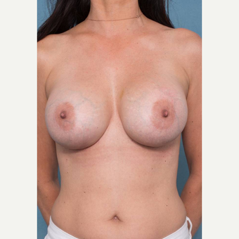 35-44 year old woman treated with Breast Implant Revision after 3289225