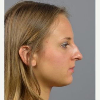 18-24 year old woman treated with Rhinoplasty before 3056392