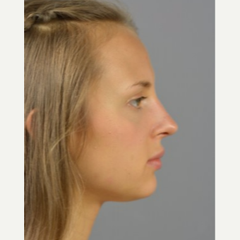 18-24 year old woman treated with Rhinoplasty after 3056392