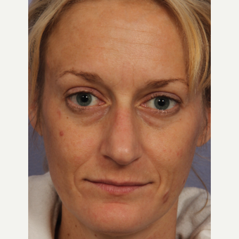 35 year old woman treated with Restylane before 3658127