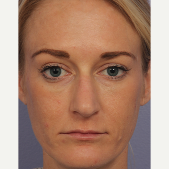 35 year old woman treated with Restylane after 3658127