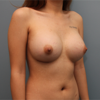 21 year old had breast augmentation using Saline Ideal Implants after 3544244