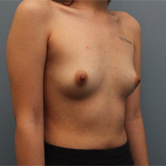 21 year old had breast augmentation using Saline Ideal Implants before 3544244