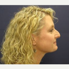 45-54 year old woman treated with Rhinoplasty before 2993628