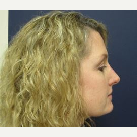 45-54 year old woman treated with Rhinoplasty after 2993628