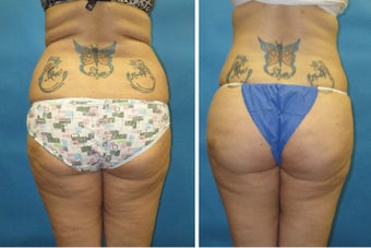Buttock Augmentation through Fat Grafting before 1180345