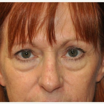 55-64 year old woman treated with Eyelid Surgery before 1577113