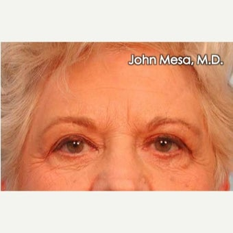 55-64 year old woman treated with Endoscopic Biplanar Brow Lift