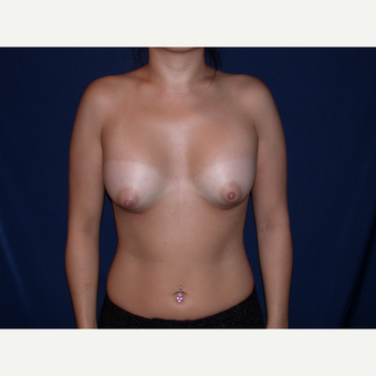 25-34 year old woman treated with Breast Augmentation after 3487287