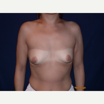 25-34 year old woman treated with Breast Augmentation before 3487287