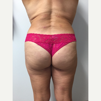 52 year old woman treated with Brazilian Butt Lift after 3682034