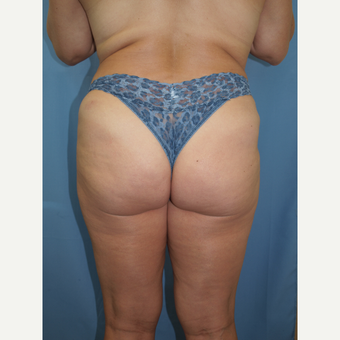 52 year old woman treated with Brazilian Butt Lift before 3682034