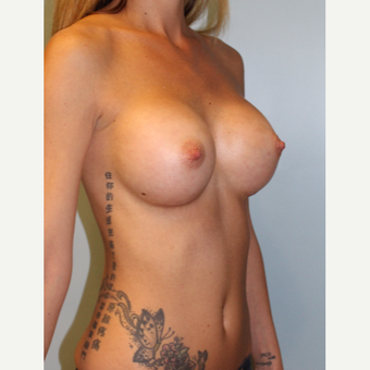 18-24 year old woman treated with Breast Augmentation after 3321767