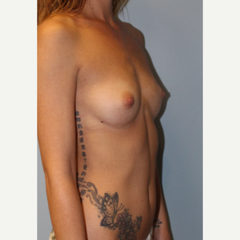 18-24 year old woman treated with Breast Augmentation before 3321767