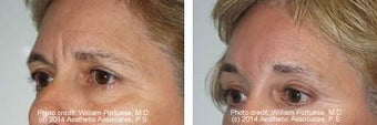 Brow Lift before 91507