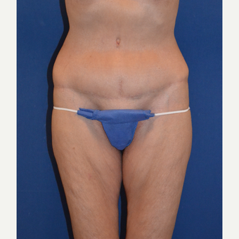 55-64 year old woman treated with Tummy Tuck after 3663583