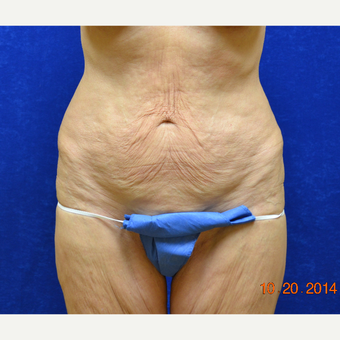 55-64 year old woman treated with Tummy Tuck before 3663583