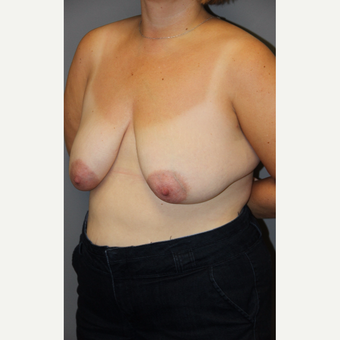 35-44 year old woman treated with Breast Lift before 3140673