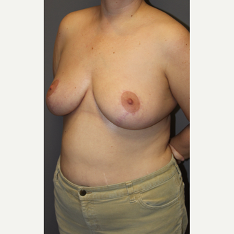 35-44 year old woman treated with Breast Lift after 3140673
