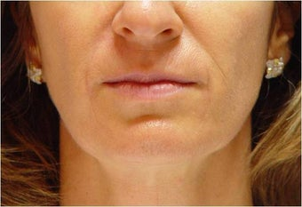 Restylane in Nasolabial folds and Marionette lines after 251710