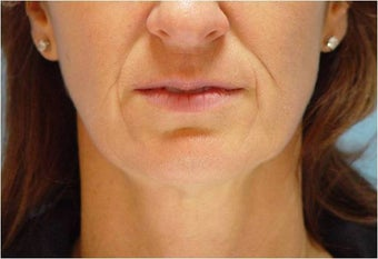 Restylane in Nasolabial folds and Marionette lines before 251710