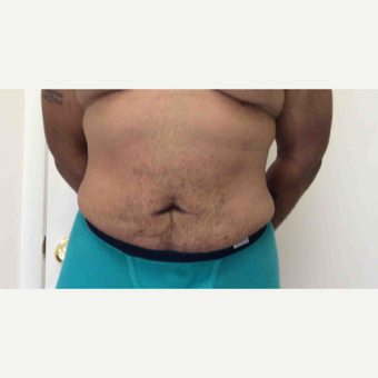 35-44 year old man treated with Liposuction after 2988779