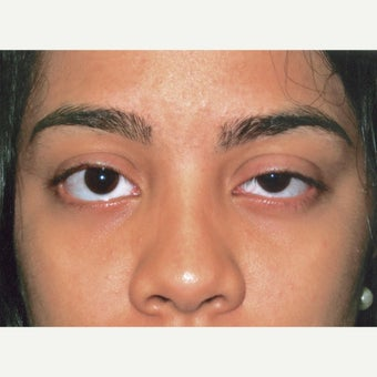 25 year old woman treated with Ptosis Surgery before 1990294