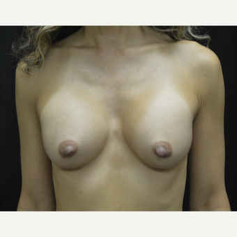 45-54 year old woman treated with Breast Augmentation after 3418129