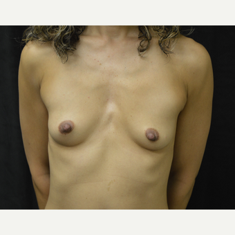 45-54 year old woman treated with Breast Augmentation before 3418129