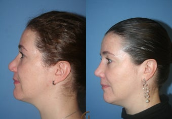 Rhinoplasty after 450419
