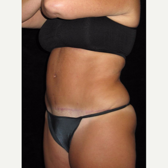 48 year old woman treated with Tummy Tuck after 3656826