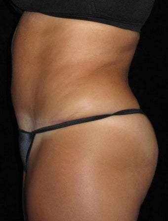 48 year old woman treated with Tummy Tuck 3656826