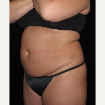48 year old woman treated with Tummy Tuck before 3656826