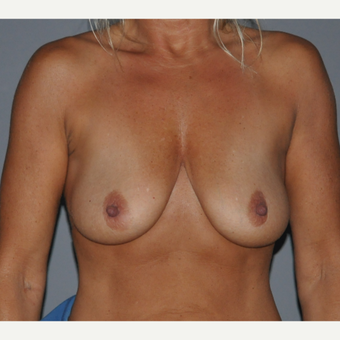 45-54 year old woman treated with Breast Augmentation before 3412645