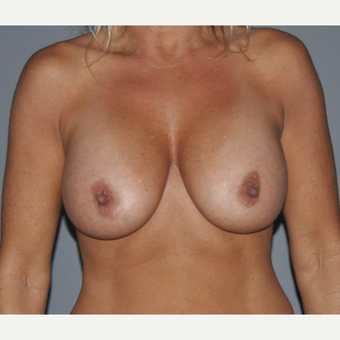 45-54 year old woman treated with Breast Augmentation after 3412645