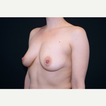 35-44 year old woman treated with Breast Augmentation before 3055148