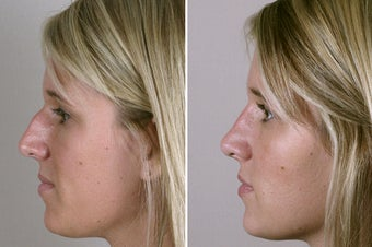 30 Year Old Female Rhinoplasty