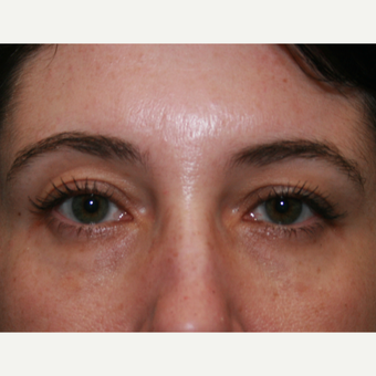 35-44 year old woman treated with Restylane after 3570840