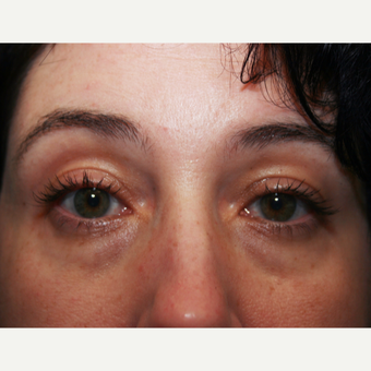 35-44 year old woman treated with Restylane before 3570840