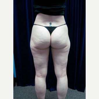 35-44 year old woman treated with Smart Lipo before 2032060