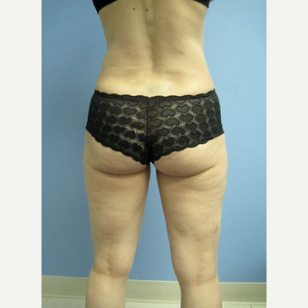 35-44 year old woman treated with Smart Lipo after 2032060