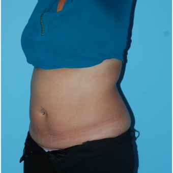25-34 year old woman treated with SculpSure after 3065510