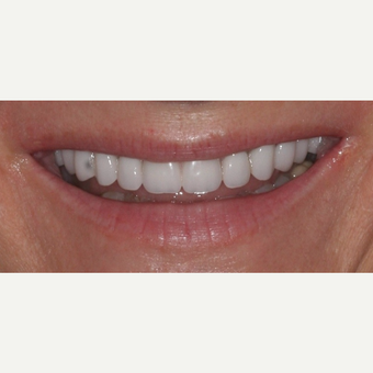 35-44 year old woman treated with All-on-4 Dental Implants after 3781247