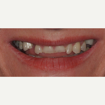 35-44 year old woman treated with All-on-4 Dental Implants before 3781247