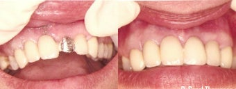 Dental Bridge Repair before 1232800