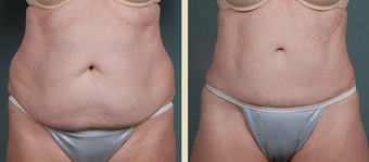 Tummy Tuck before 1377800