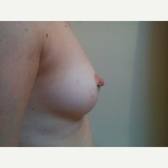 18-24 year old woman treated with medical piercing for correction of inverted nipple